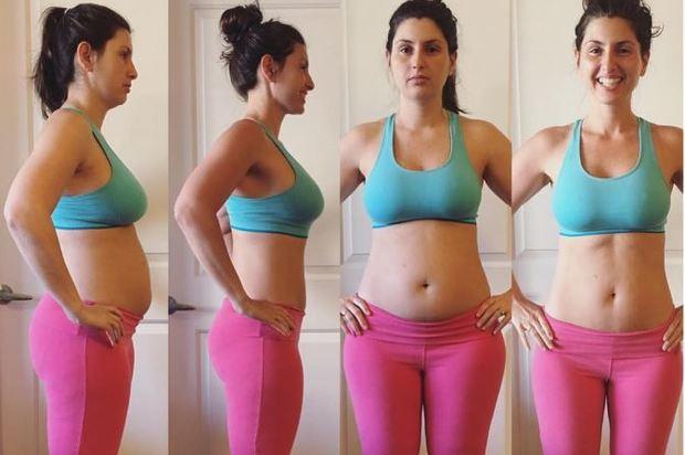 Conozca cómo desinflamar el vientre después del parto