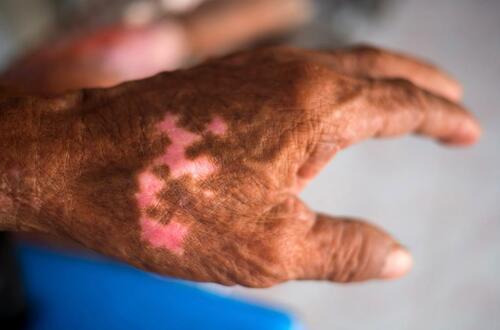 ¿La lepra aún existe y tiene cura?