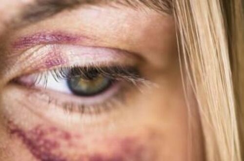 Rechazan actos de violencia contra mujer en Villavicencio
